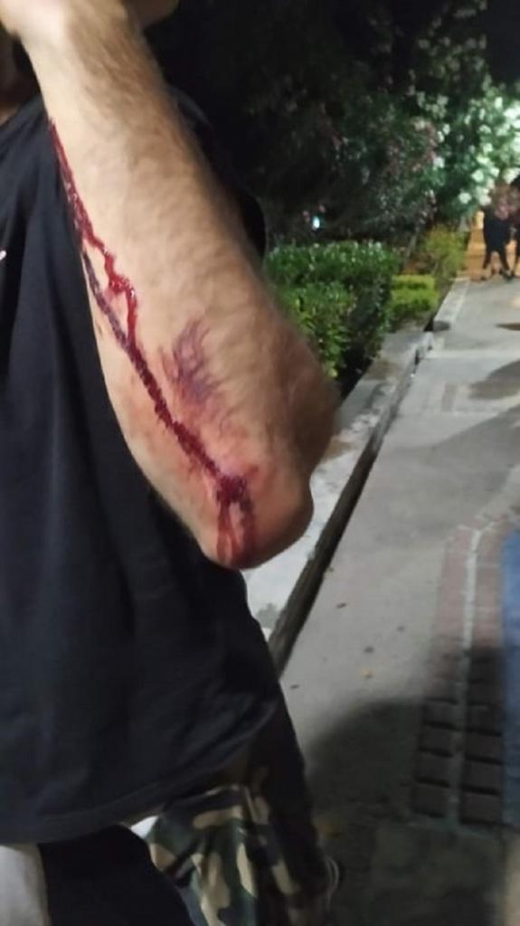 τραυματισμός μαρε