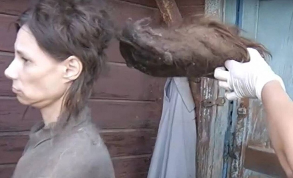 Η 42χρονη γυναίκα δεν είχε κάνει μπάνιο από το 2006!