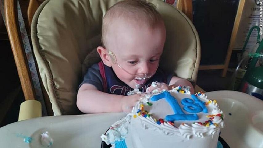 Κόντρα στις πιθανότητες, ο μικρός αγωνιστής έσβησε το πρώτο του κεράκι στην τούρτα - Πηγή φωτογραφίας: Guinness World Records