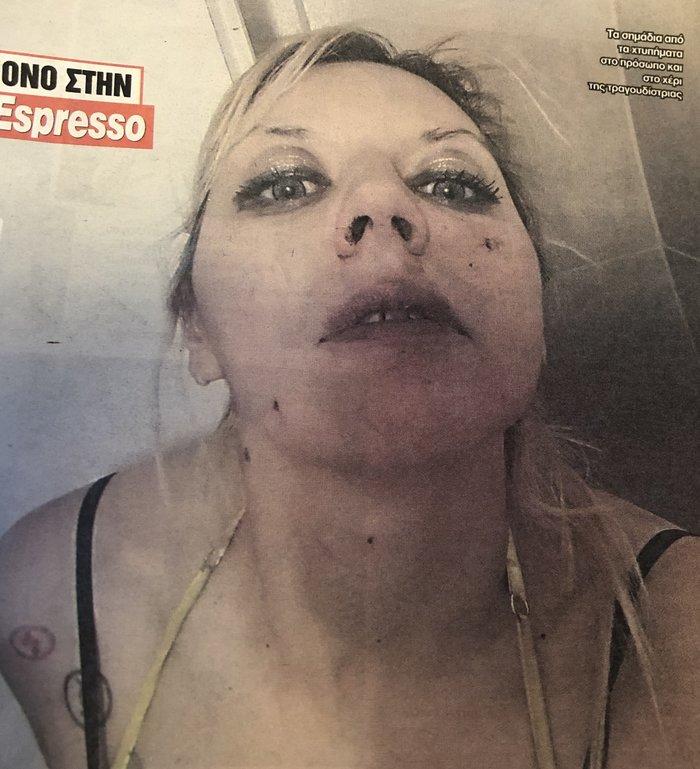 H Πωλίνα Απέργη κατήγγειλε η ίδια το περιστατικό